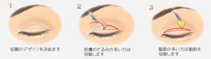 eye-002